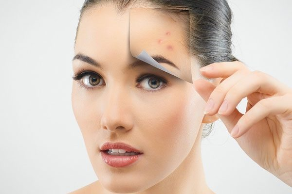 درمان خانگی جوش صورت
